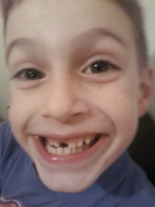 woke up in the morning and the tooth was gone from his mouth never to be seen again.....again, kind of creepy